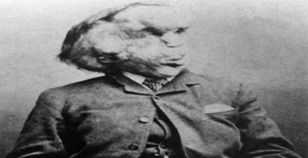 Kejadian aneh, Joseph Carrey Merrick, manusia gajah